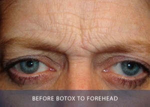botox-a-before