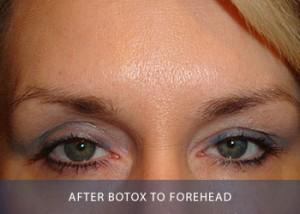 botox-b-after