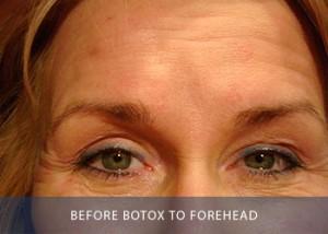 botox-b-before