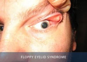 floppy-eyelid