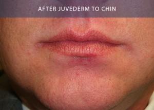 juvederm-chin-after
