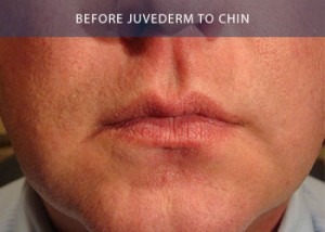juvederm-chin-before