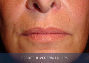 juvederm-lips-before