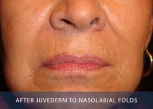 nasolabial-after