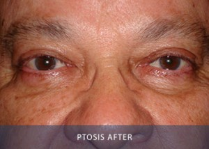 ptosis-after