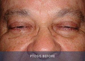 ptosis-before